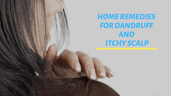 natural home remedies for dandruff and itchy scalp