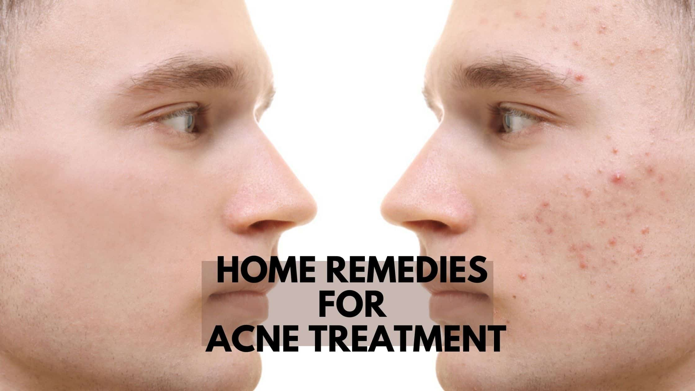 Clear Pimples At Home Naturally Top 8 Home Remedies For Acne