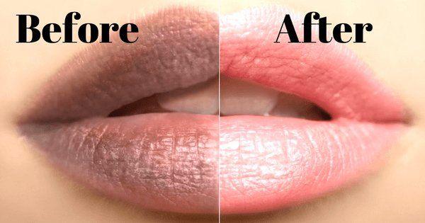 lighten dark lips at home