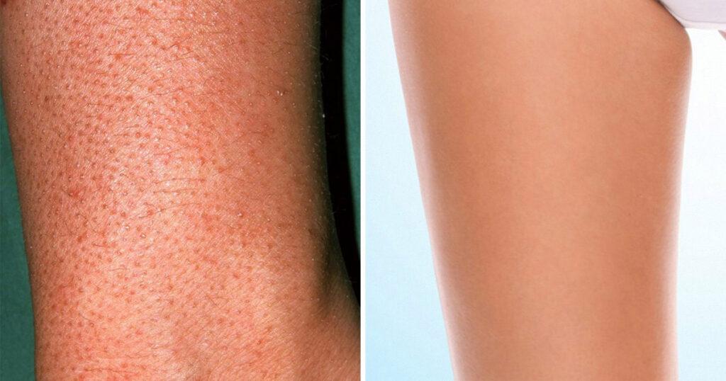 strawberry legs treatment