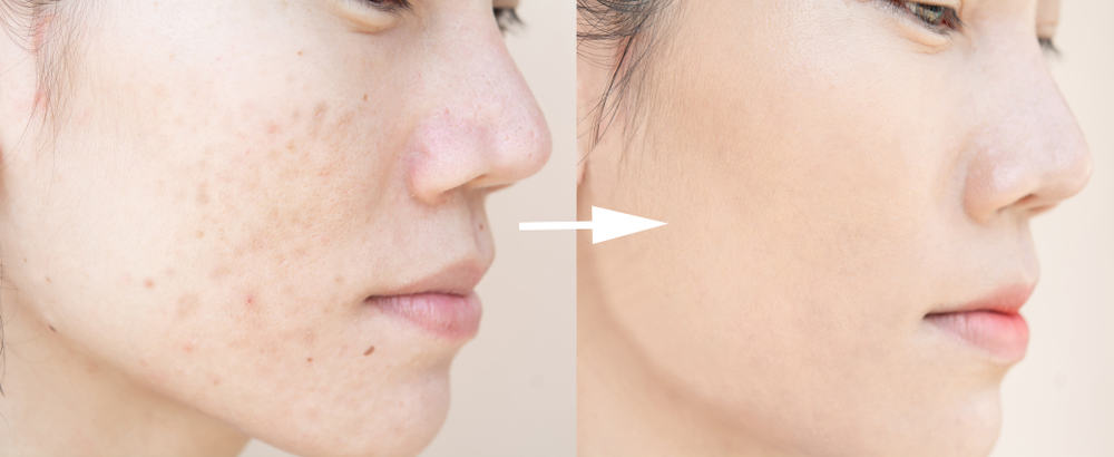 pimple scars